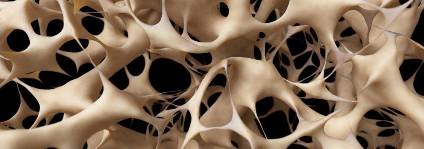 Coaching des femmes de 50 ans : 2ème partie sur l'ostéoporose