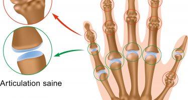 L'arthrose de la main et du genou